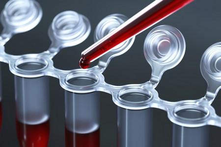 Аналізи крові у чоловіків на АСТ і АЛТ: норми і відхилення