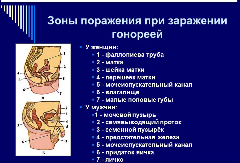 Причини свербіння в сечовому каналі у чоловіків