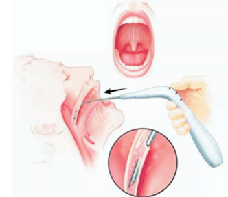 хирургическое устранение храпа