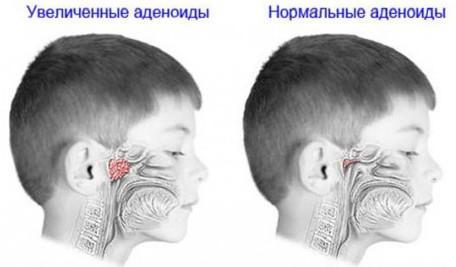 аденоиды у детей лечение без операции