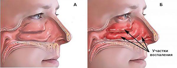 аллергия слизистой носа