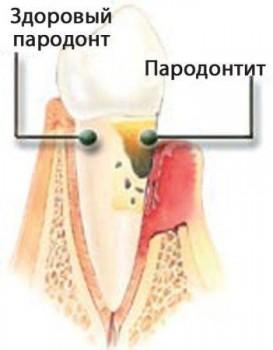 Паодонтит