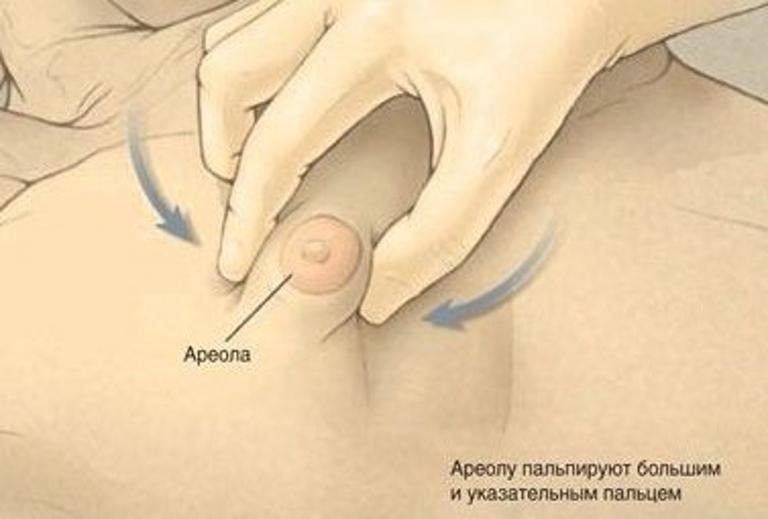 Як визначити гинекомастию
