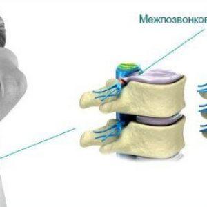 mediannaya-gryzha-diska-simptomy-lechenie-1