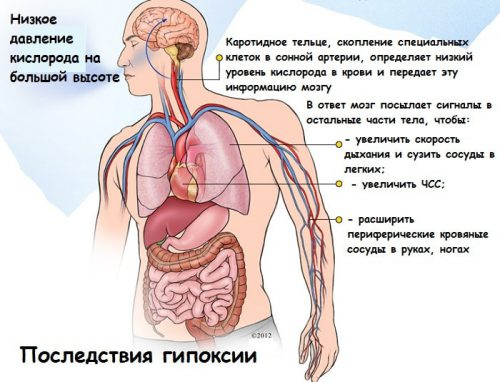нехватка кислорода органам и тканям