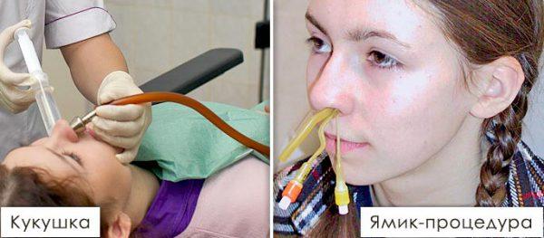 электроотсос из носа