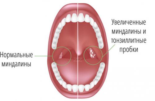 бактериальный тонзиллит