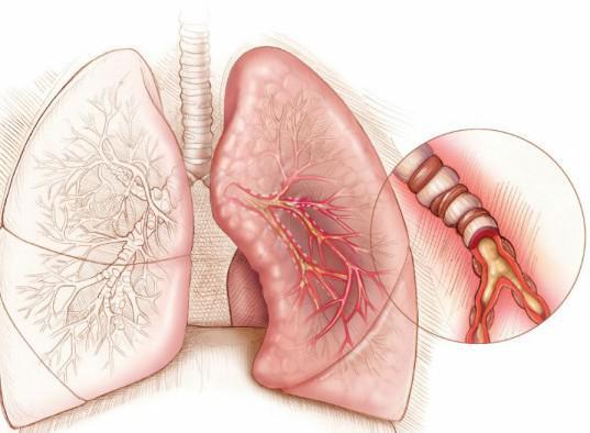 неутопическая астма