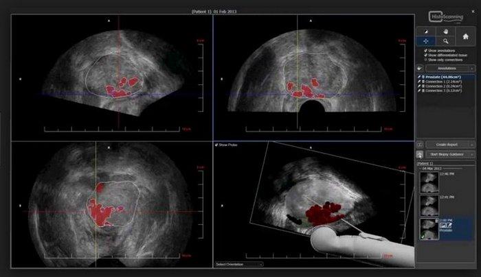 Рак передміхурової залози: лікування та прогноз