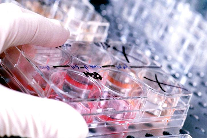 Анализ крови на АФП (анализ на альфа-фетопротеин)
