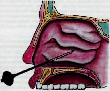 Оперативное лечение верхнечелюстного синусита заключается в пункции («проколе») верхнечелюстной пазухи.