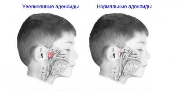 аденоиды 2 степени у детей лечение