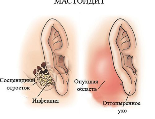 хронический мастоидит
