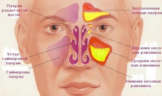 хронический гайморит лучшее средство