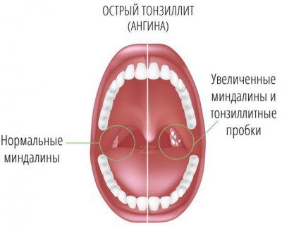 простая форма тонзиллита