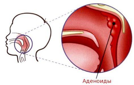 гипертрофия носа