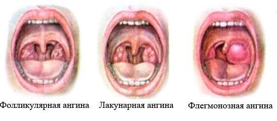 лакунарный тонзиллит