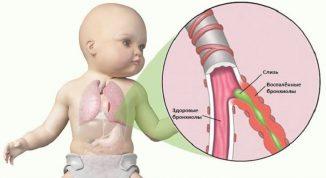 острый трахеит лечение у ребёнка