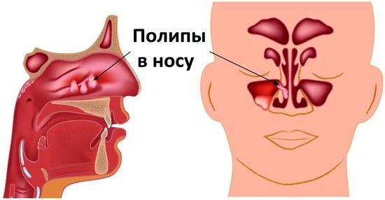 полипы в носу у ребенка симптомы