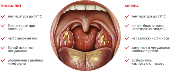 разница между ангиной и тонзиллитом
