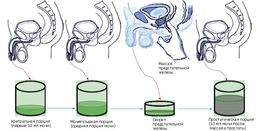 Діагностика простатиту: 4 склянки проба сечі