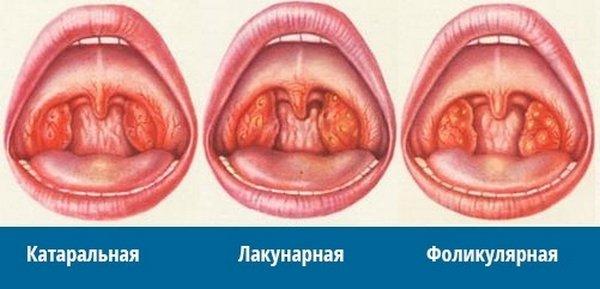 острый тонзиллит у ребенка