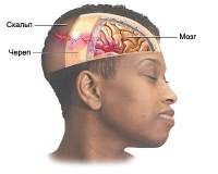 сотрясения головного мозга