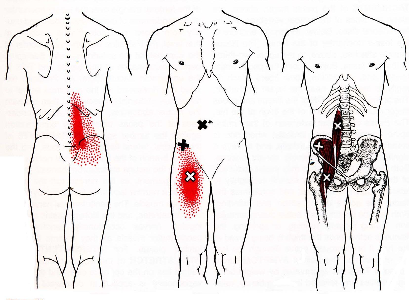 Симптоми і лікування синдрому тазових болів у чоловіків