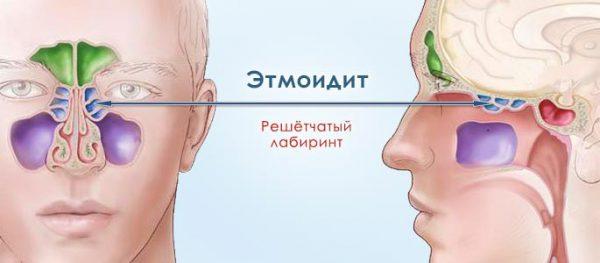 этмоидит