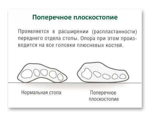 Проявления поперечного плоскостопия