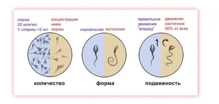 61270-prostata-vliyaet-na-spermu