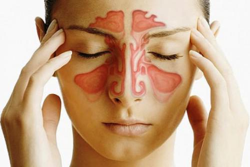 Ринит как причина боли в носу
