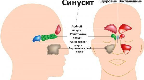 Синусит как причина боли в носу