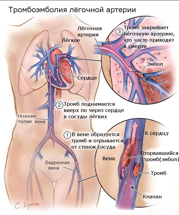 высокий уровень гемоглобина