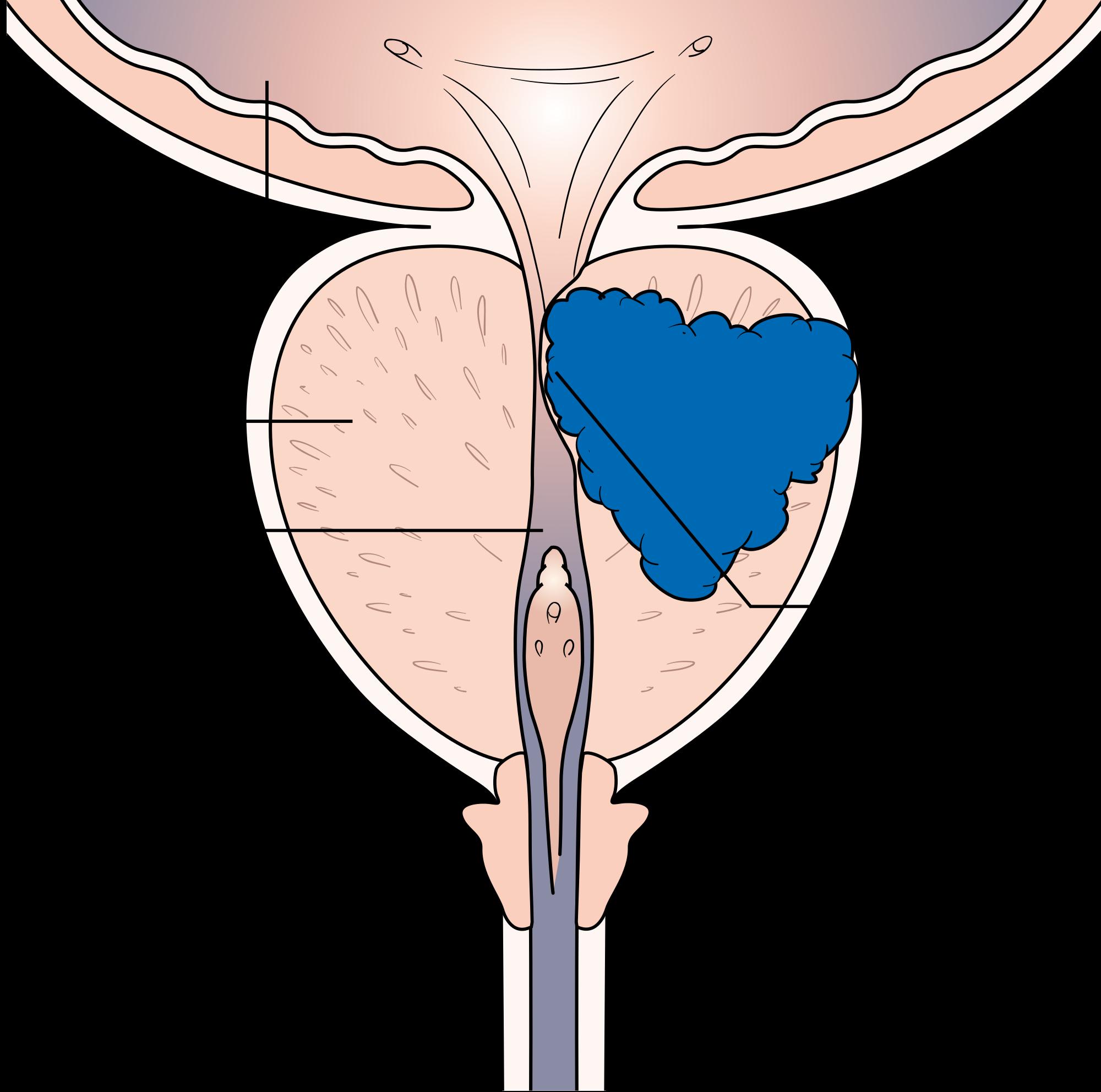 Прогноз при раку передміхурової залози 2 ступеня