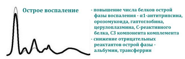 elektroforez-belkov-krovi