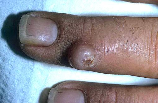 Лечение фибром на коже
