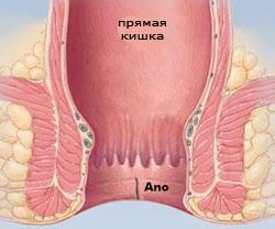 Фиссуры прямой кишки при беременности