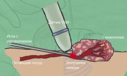 Лазерное лечение гемангиомы