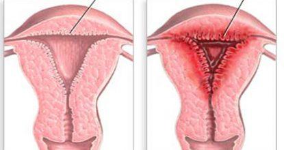 Гиперплазия эндометрия: виды, симптомы и лечение, профилактика