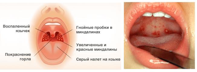 gnojnaya-angina