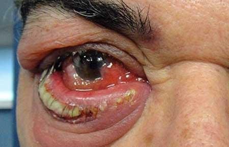 Гнойное воспаление века глаза, фото