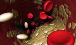 Холестерин низкой плотности