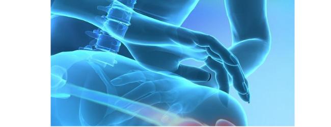 Infekcionnyj artrit