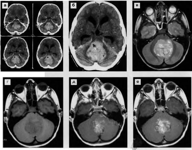Метастази в головний мозок