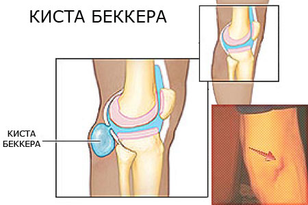 Киста Беккера под коленом