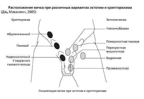 Kriptorhizm-u-muzhchin