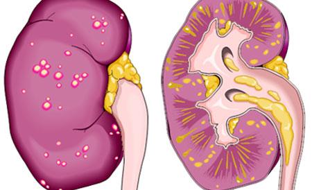Лечение хронического пиелонефрита
