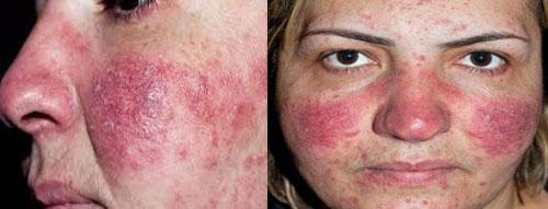 Лечение розацеа на лице