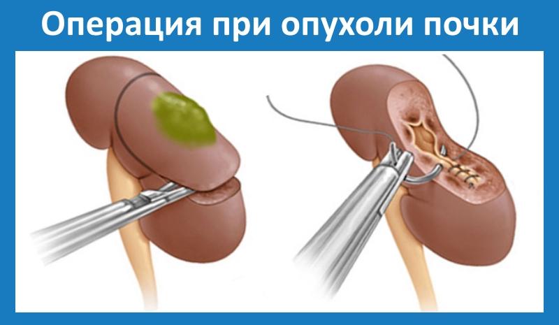 Пухлина нирки доброякісна: види, принципи лікування